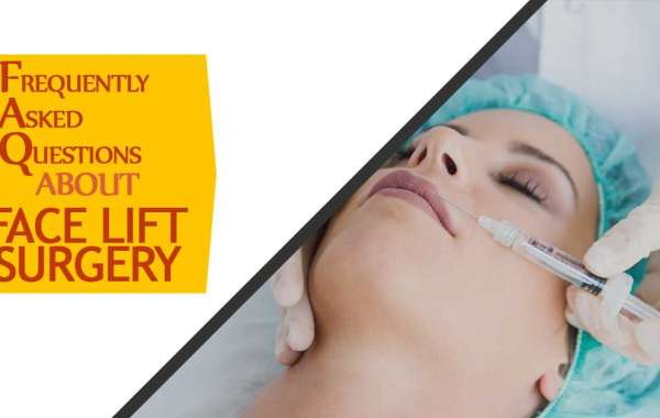 Frequently Asked Questions about Face Lift Surgery