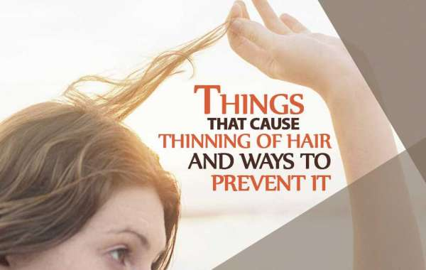 Things That Cause Thinning Of Hair And Ways To Prevent It