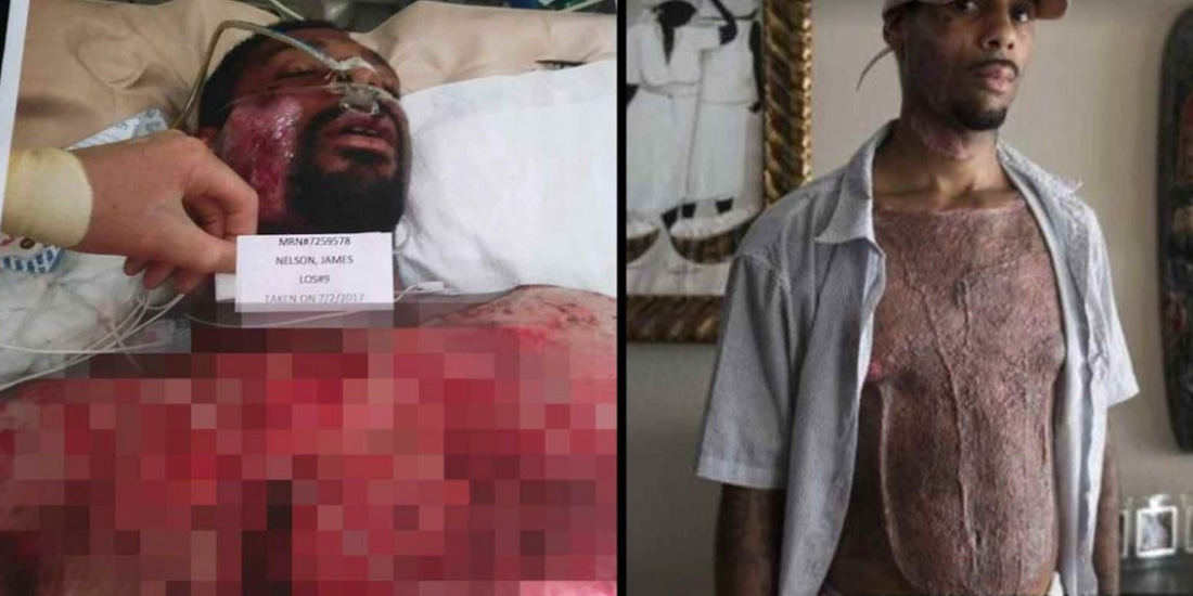 City Pays $1.2M After Cops Held Mentally Ill Man Down On Scorching Asphalt Until His Skin Melted Off - Black Main Street